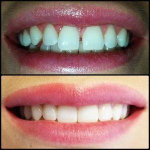 Margate Dentist At Its Best Get Your Picture Perfect Smile