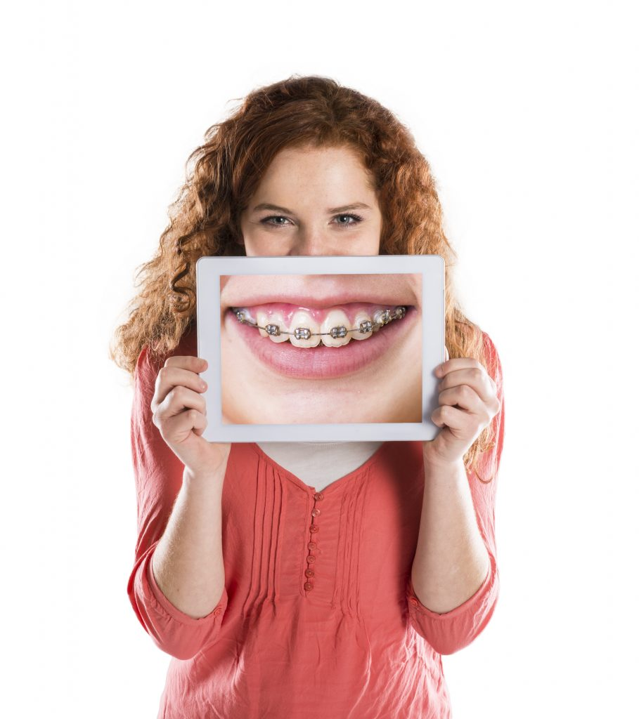 Invisalign Lets Anybody Enjoy Straighter Teeth